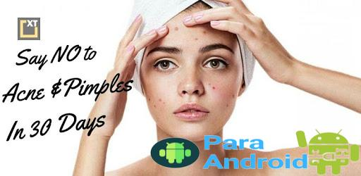 Cure Acne (Pimples) in 30 Days – No Chemicals